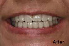 crooked teeth after