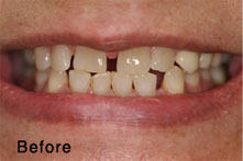 crooked teeth before
