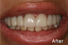 two toned teeth after
