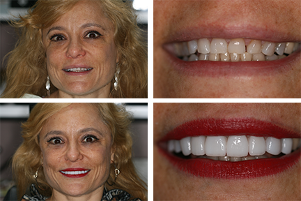 patient before and after veneers