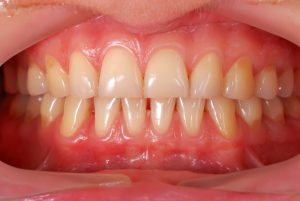 A mouth with mild gum disease.
